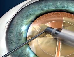 Phacoemulsification Cataract Surgery Roque Eye Clinic Eye Com Ph
