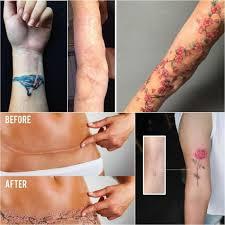 перекрытие шрамов на животе татуировка на животе на шраме фото