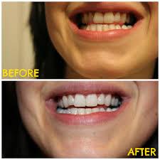 dr oz teeth whitening home remedy baking soda lemon 2016 car release