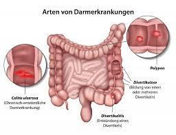 Symptome einer darmentzündung