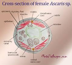 Ascariasis Roundworms Ascaris Lumbricoides Roundworm Causative Agent Of
