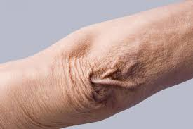 crepey skin causing thin and wrinkled skin on elbow