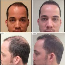 Body Hair Style dr u hair clinic patient results album body hair transplant 3388 by stevesalt.us