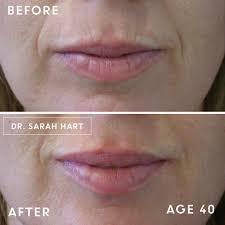 natural look with dermal filler
