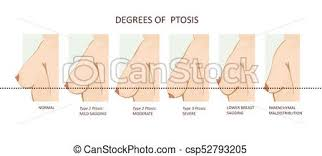Ptosis Chart Degrees Of Breast Ptosis