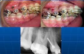 case of screw embedded in soft tissue can be seen click here examples h90 examples