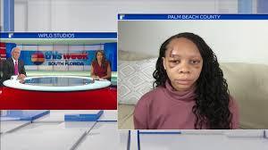 Protestor hit by apparent rubber bullet Latoya Ratliff discusses ...