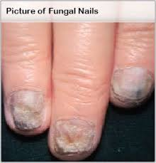Nail Fungus Treatment, Remedies, Medications, Causes & Pictures