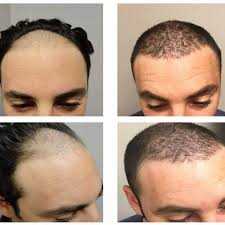 hair transplant how it works hair transplant newport beach hair restoration ziering medical