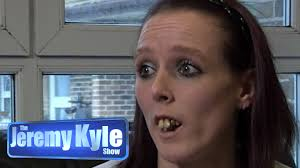 people with horse teeth. Brilliant Horse Inside People With Horse Teeth H