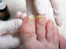there are several possible causes of yellow toenails including fungal infection and overuse of nail polish this symptom can sometimes indicate a more