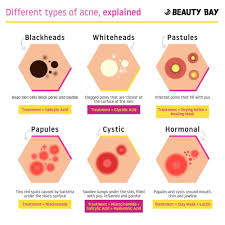 Pimples On Body Chart Different Types Of Acne And How To Treat Them Coolguides