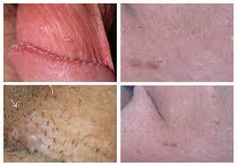 hpv warzen genitalbereich