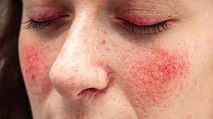Despite intensive topical therapy, treatment with oral corticosteroids and oral doxycycline was unable to achieve suff … Rosacea Treatments Types Causes And Symptoms