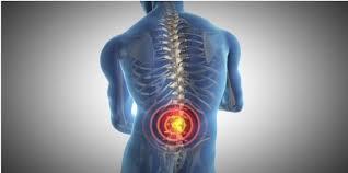 Resultado de imagem para dor ciática
