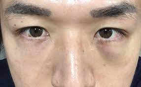 眉間 ヒアルロン 酸