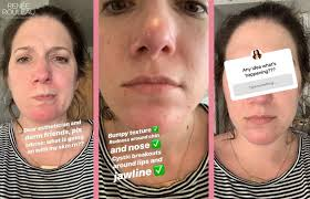So, dry skin acne treatment needs a different approach. How To Get Rid Of Dry Skin Caused By Harsh Acne Treatments Renee Rouleau