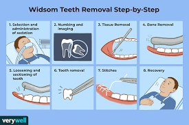 Dental insurance companies will contract with dentists setting up fees that your dentist or surgeon must abide by. Wisdom Teeth Removal Surgery Preparation And Recovery