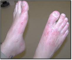 Keys To Diagnosing And Treating Contact Dermatitis | Podiatry Today
