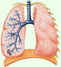 Первичный туберкулез и его формы