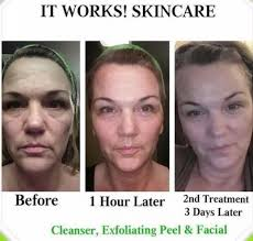 it works exfoliating peel before and after exfoliating peel the carla burns