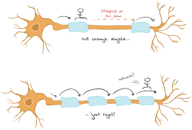 What Is Multiple Sclerosis Article Khan Academy