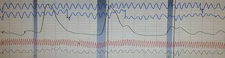 Polygraph Chart Definition Faq