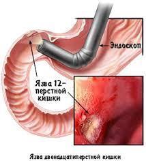 Госпитальная хирургия № Пациентам заболевания язвенная болезнь 5 Что можно выявить при лабораторных и инструментальных методах исследования