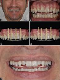 Dental Smile Design Albuquerque Medknow Publications Publisher Of Peer Reviewed Scholarly