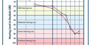 Hearing Loss Understanding The Audiogram