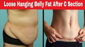 how to reduce belly fat after pregnancy