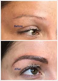 learn how microblading can help you