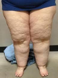 Are big thighs ugly? - GirlsAskGuys