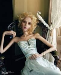 real anorexic people.  Anorexic You Which Is My Anorexia And Then Thereu0027s The Real K Real Me  Logic Part Of  In Real Anorexic People