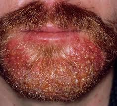 Folliculitis, Acute Bacterial [Bockhart's Impetigo, Superficial ...
