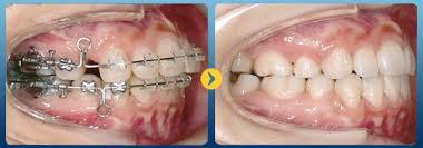 Niềng răng sứ giá bao nhiêu tiền? Bảng giá Chuẩn & Mới Nhất 2018 1