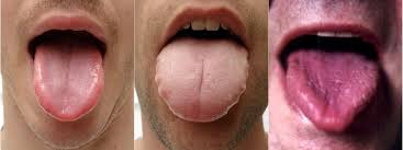 Chinese Medicine Tongue Diagnosis Comox Valley Acupuncture