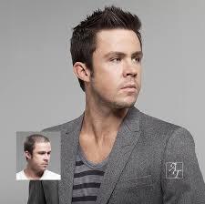 hair restoration men richmond va