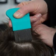 Lice poop can make your head itch | Health24