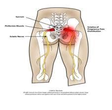 pregnancy sciatic nerve pain relief