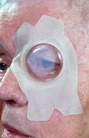 St-Anna - kaakchirurgie geldrop - parotidectomie