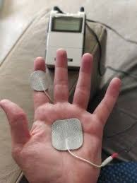 Trigger Finger Placement Chart Tens Unit For Trigger Finger Trigger Finger Treatment
