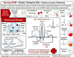 Telemetry Heart Rate Chart Ecg Telemetry Monitoring Cardiac Nursing Critical Care