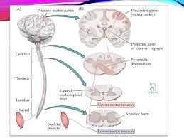 sign symptom of lower motor neuron lesion