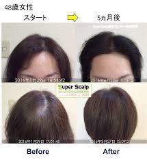 美容室の白髪染めによる薄毛が5ヶ月で改善仙台40代女性発毛実績