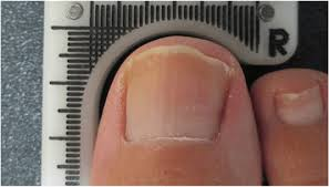 Lunula Laser | a revolutionary fungal nail treatment | OnePointPodiatry