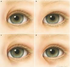 developmental eyelid abnormalities
