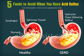 Acid Reflux Diet Chart 5 Foods To Avoid When You Have Acid Reflux
