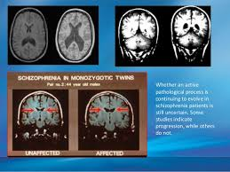 Schizophrenia with Obsessive Compulsive Symptoms  Clinical and     Internet Mental Health