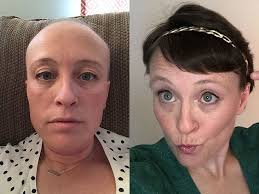 photos of hair loss and recovery